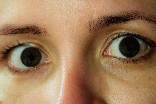 Money Saving Hoi An Travel Guide LASIK Surgery Eye Laser Surgery Vietnam