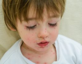 Family Medical Practice Danang. Chickenpox